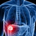 tumore-del-fegato
