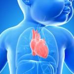 cardiopatia-congenita-autismo
